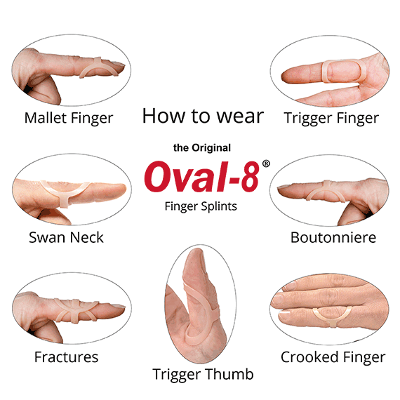 Finger Splint Sizer Kt 3 Point Products Oval 8 Splint Sizing Set